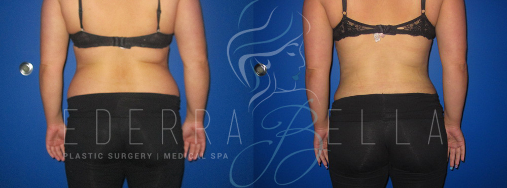 Liposuction Ederra Bella