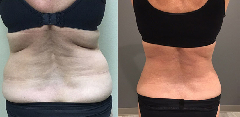 Liposuction - Ederra Bella
